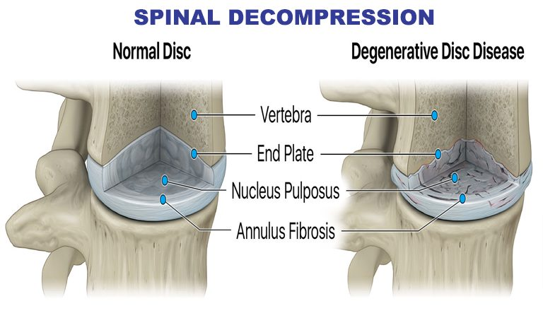 SPINAL DECOMPRESSION New